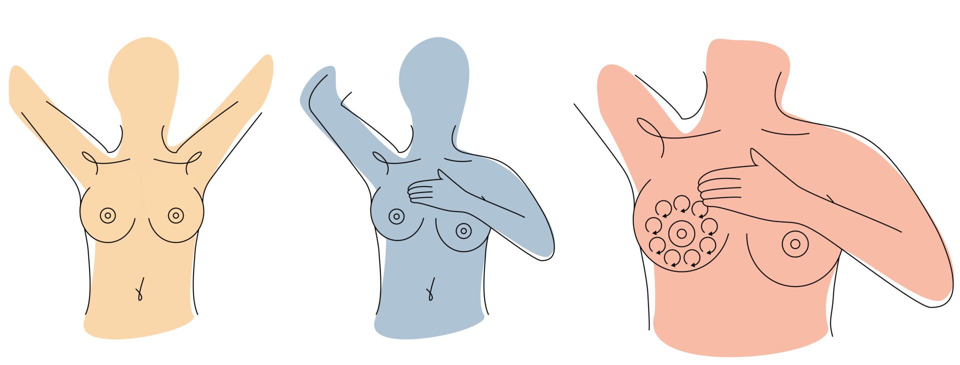 små knölar i bröstet